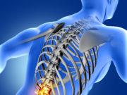 Tema para TCC de Radiologia